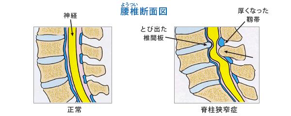 腰部脊柱管狭窄症 - 山形愛心会...